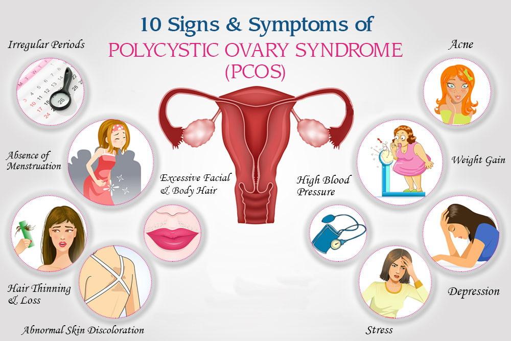 पीसीओएस के लक्षण