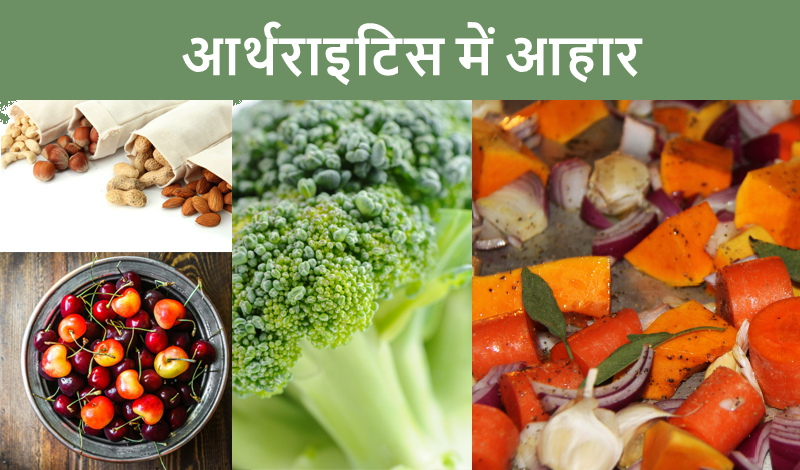 आर्थराइटिस का दर्द - Foods for Arthritis patients