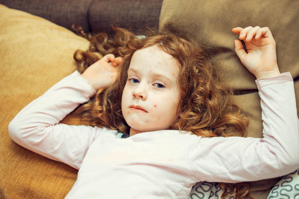 Measles Vaccine खसरे का टीका