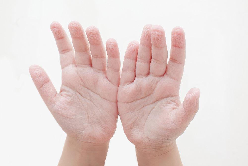 सिकुड़ी हुई हाथों की उंगलियाँ