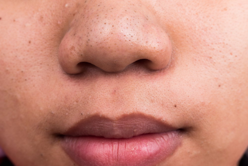 Nose having blackheads