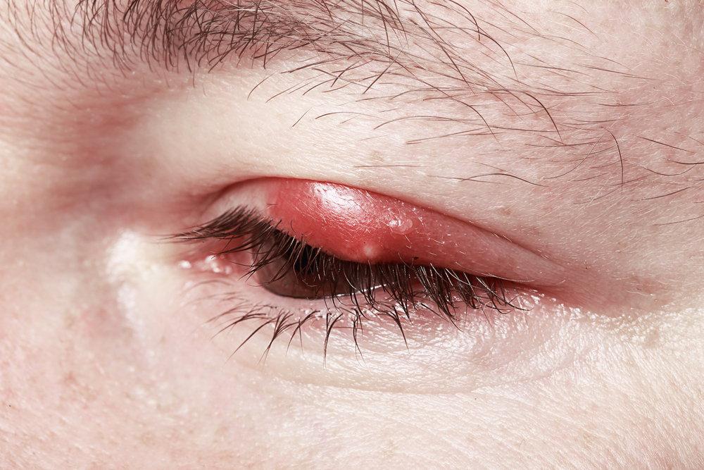 आंखों की सूजन