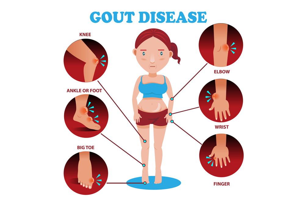 गाउट रोग का इलाज