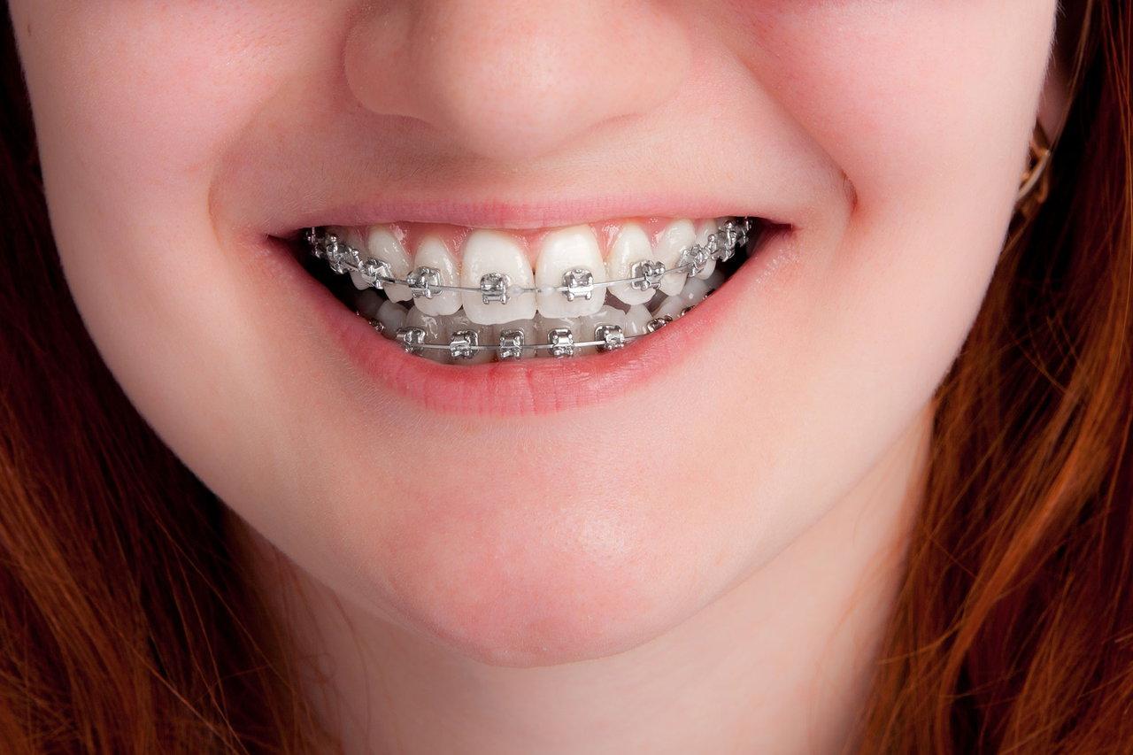 बिना तार टेढ़े मेढ़े दांत सीधे करें