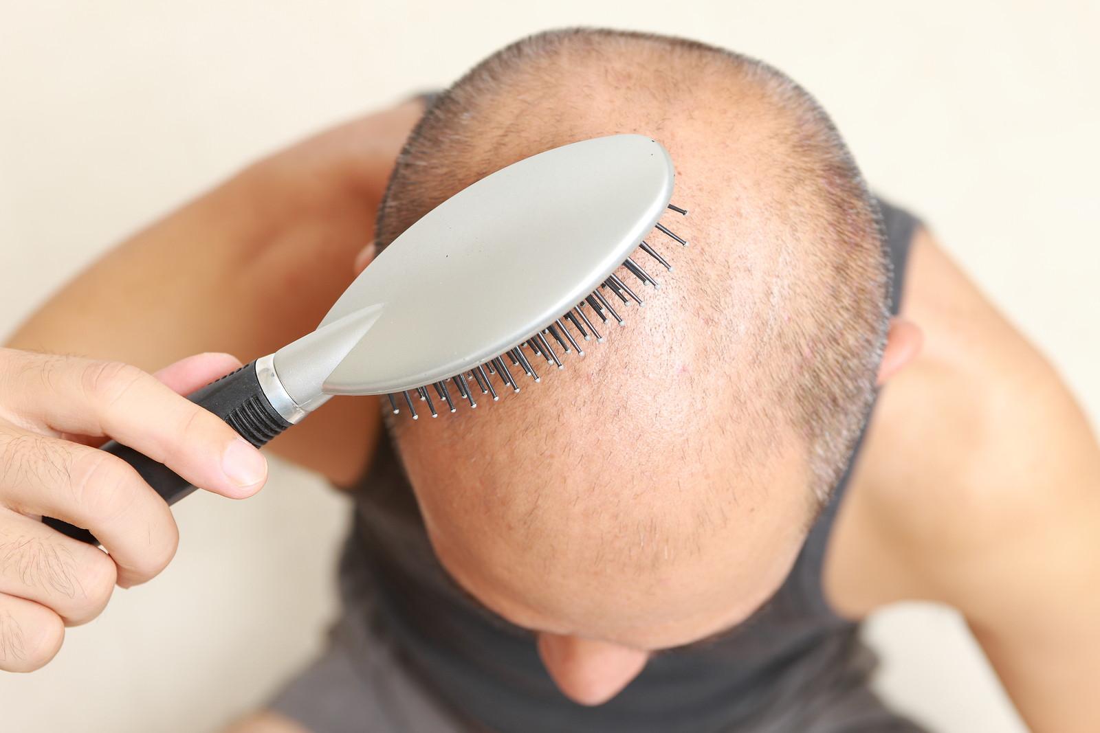 bal jadhana hair loss