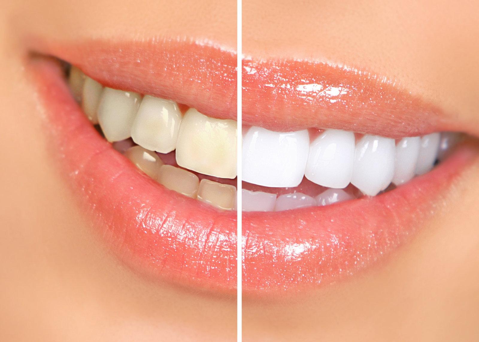 पीले दांत सफेद करना