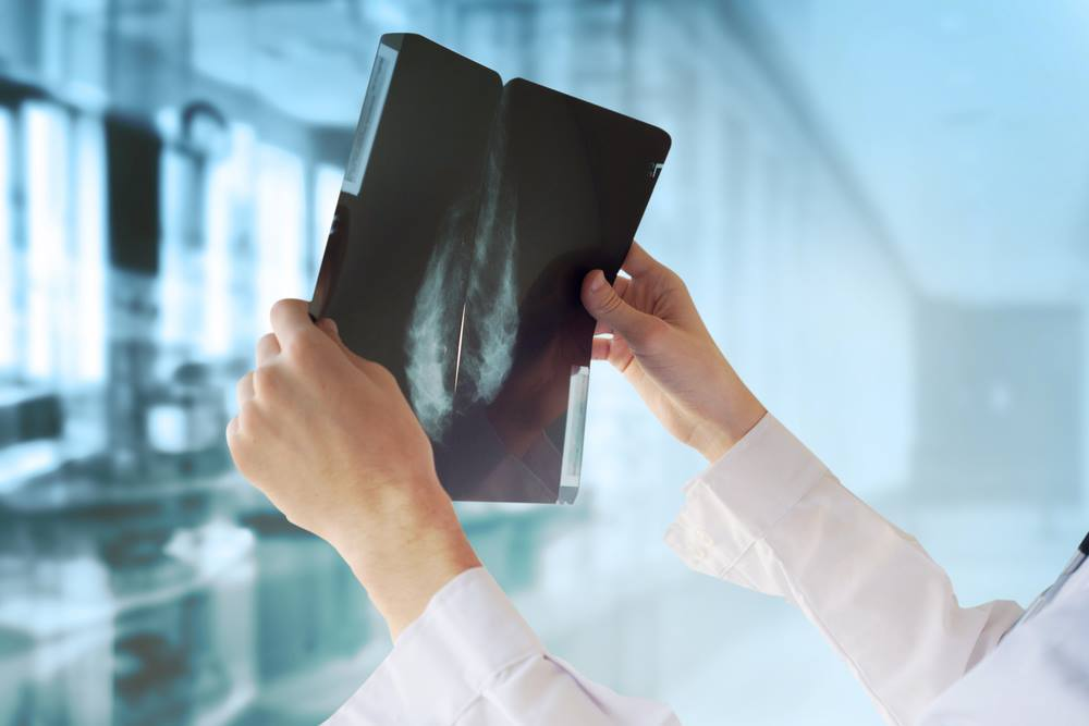 छाती में ट्यूमर का एक्स-रे