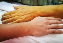 जॉन्डिस काला पीलिया का इलाज