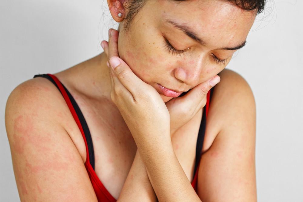 स्किन एलर्जी त्वचा की एलर्जी के लक्षण और उपाय